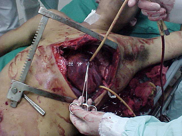 Foley catheter in heart